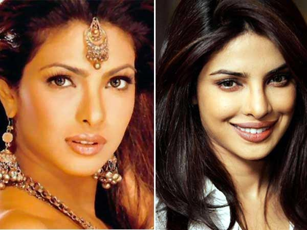 Top PLASTIC SURGERY PHOTOS of Bollywood Celebrities - BEFORE & AFTER