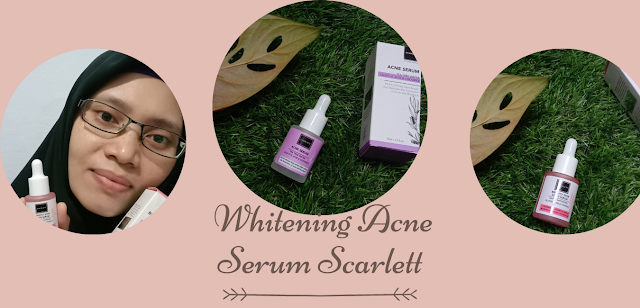 Review serum Scarlett