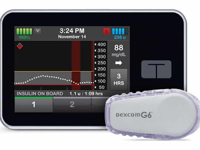 البنكرياس الصناعي الجديد t-slim Control-IQ