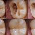 O remédio que nenhum dentista quer que seja divulgado porque este remove as caries sem dor algum