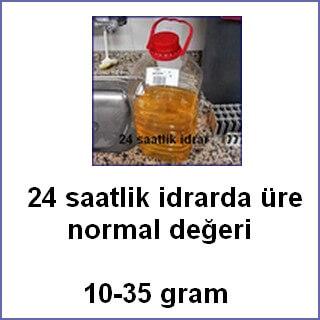 24 saatlik idrar üre normal değeri