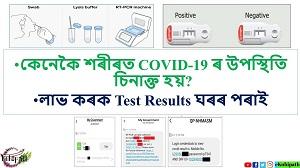 কেনেকৈ শৰীৰত COVID-19ৰ উপস্থিতি চিনাক্ত হয়? কিদৰে ঘৰতে লাভ কৰিব আপোনাৰ Test Results?