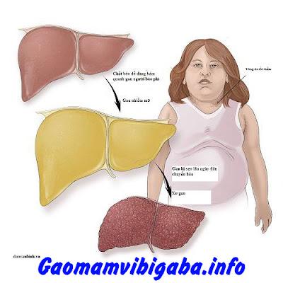 Gạo Lứt Nảy Mầm Tẩm Tỏi Đen Vibigaba Thích hợp cho người bệnh mỡ máu, gan nhiễm mỡ