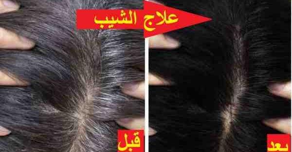 تجربتي مع زيت الميرمية للشيب قبل و بعد الاستعمال