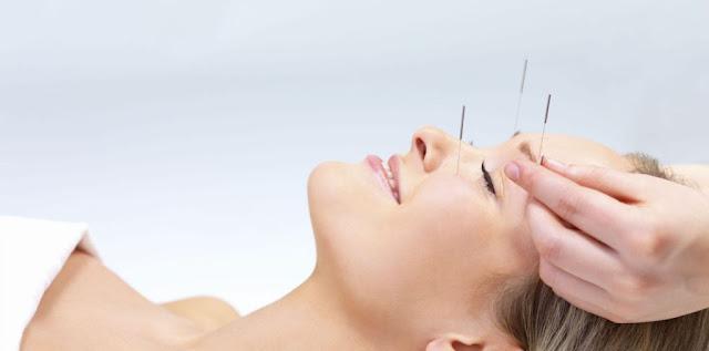 akupunktur acıtırmı