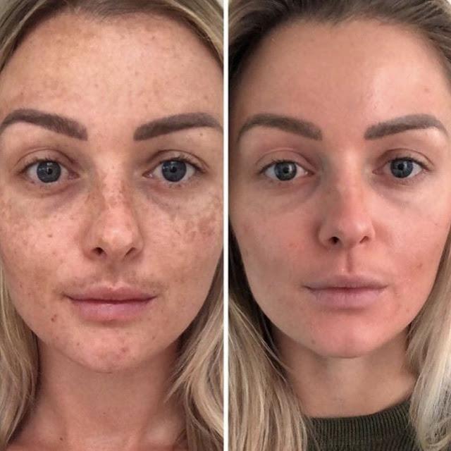Comment faire pour avoir une peau plus saine