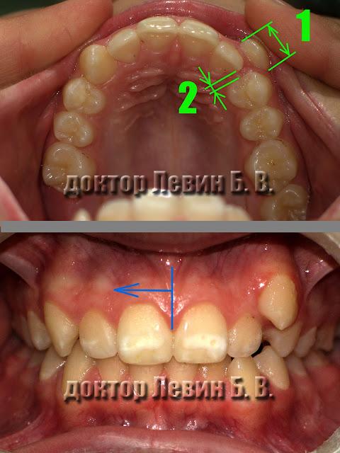 На фото изображен зубной ряд. Обозначена ширина клыка и ширина пространства для этого зуба