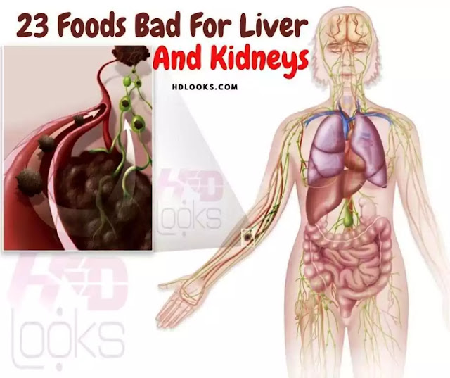 23 Foods Bad For Liver And Kidneys