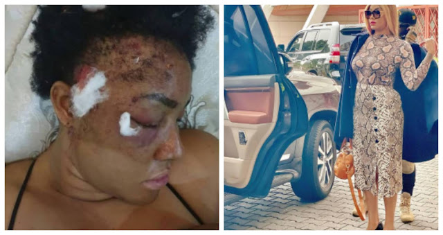 After 2 years plus, pellets are still coming out- Actress, Angel Okorie shows X-ray of her head years after she was shot by Gunmen (Video)