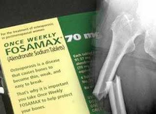 fosamax yan etkileri