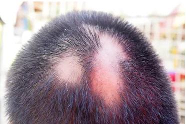 Circular Hair Loss