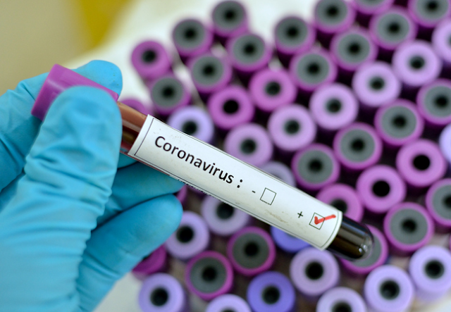 what is Coronavirus, Coronavirus In India, coronavirus case in Noida