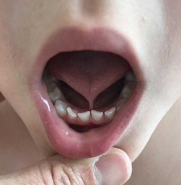 tongue-tie-pada-bayi