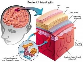 Kenali 11 Gejala Meningitis atau Radang Selaput Otak