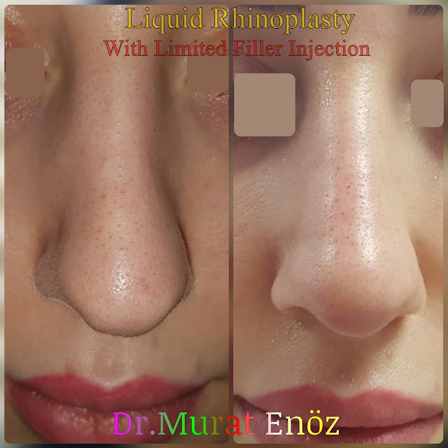 Non-surgical rhinoplasty in Istanbul - The 5 Minute Nose Job in İstanbul - Non-surgical nose job - Nose filler injection Turkey - Injectable nose job - Liquid rhinoplasty