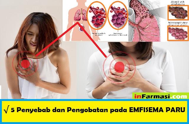 Penyakit Emfisema Paru