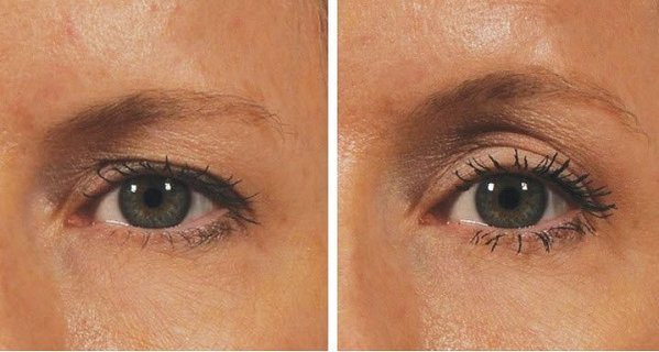 Want an Eye Lift Without Surgery? You'll Need 2 Minutes Only! Here is how!