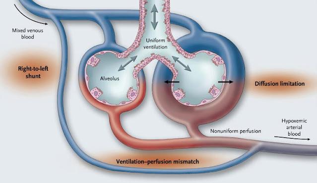 Hepatopulmonary syndrom