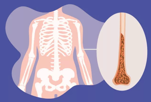 11 Penyakit Tulang yang Perlu Anda Kenali (No. 9 Paling Bahaya)