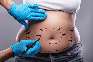 Liposuction (Yağ Aldırma) Nedir? Nasıl Uygulanır? Liposuction İle İlgili Tüm Bilmeniz Gerekenler