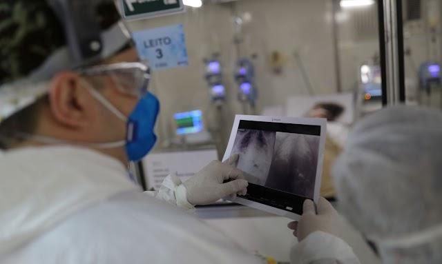 Brasil registra 17,2 milhões de casos de covid-19 e 482 mil óbitos