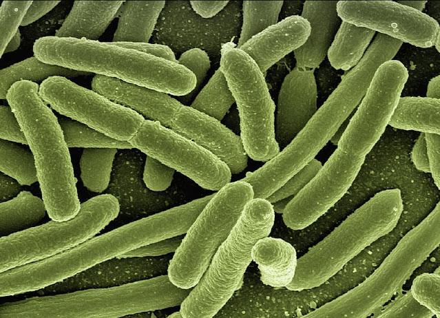 microbes, bacteria e coli, Immunity, Immune system, immunity booster, immunity boosting food, pathogens, pathogen, pahtogen, virus, coronavirus, covid-19, sick, head immunity, boost immunity, immunity system, define immunity, definition of immunity, immunity definition, heard immunity, boosting immunity system, pathogenic, pathogenesis, pathogenetic, pathogen detection, resistance, pathogen example, immunodeficiency, virus, bacteria, parasite, fungi, antibody, antigen