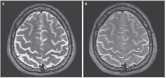 Hình ảnh chụp cộng hưởng từ (MRI) bộ não của một phi hành gia vào thời điểm trước (hình A) và sau (hình B) thời gian dài sống trong môi trường không trọng lực ở không gian vũ trụ. Hình ảnh: The New England Journal of Medicine ©2017.