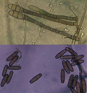 A composite microscope photograph of spores of the Bipolaris fungus