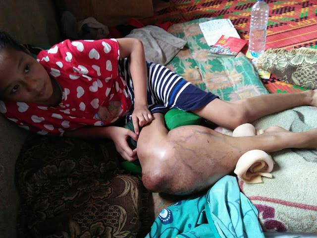 Anak Yatim Penderita Tumor Ganas di Limapuluh Kota Ini Butuh Uluran Tangan