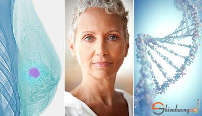 Nguyên nhân gây ung thư vú: Di truyển và lớn tuổi