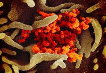 فيروس كورونا .. صور حقيقية تكشف كيف يبدو هدا الفيروس  الفتاك!