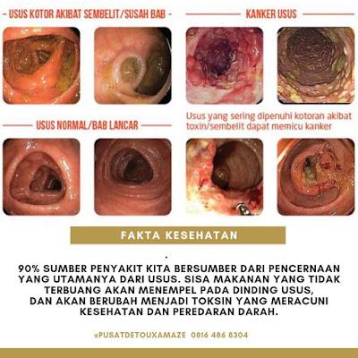 usus kotor sumber penyakit