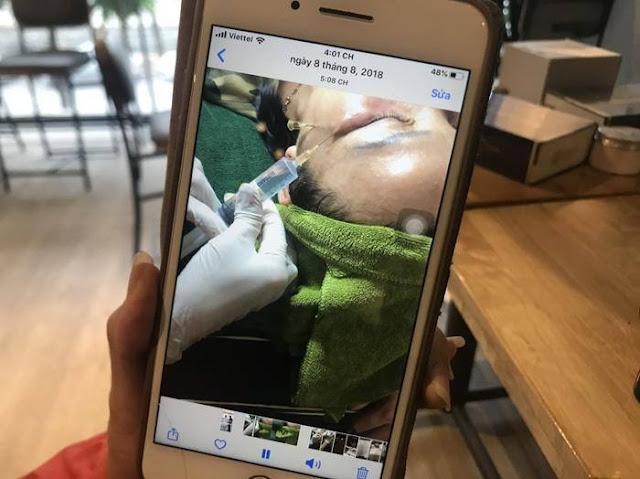 Hàng loạt chủ spa tố cơ sở làm đẹp tại Hà Nội bán mỹ phẩm trị nám mặt gây dị ứng, nổi mẩn đỏ nhiễm trùng