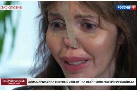 Экс-жена Аршавина впервые показала обезображенное лицо на шоу, раскрыв, кто виноват в её болезни
