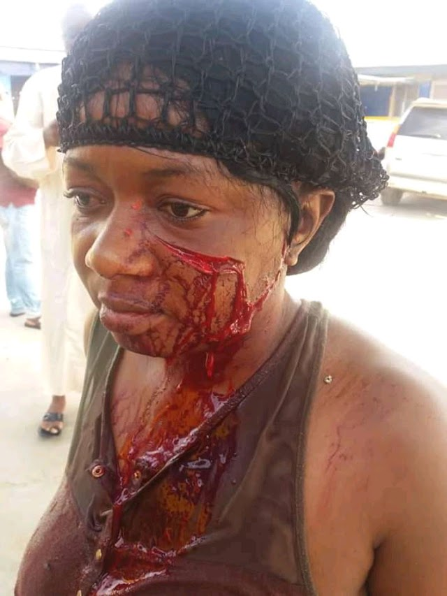 Shocking: Landlady stabbed tenants wife almost to death in Lagos