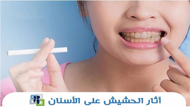 آثار الحشيش على الأسنان وأضرارها على اللثة