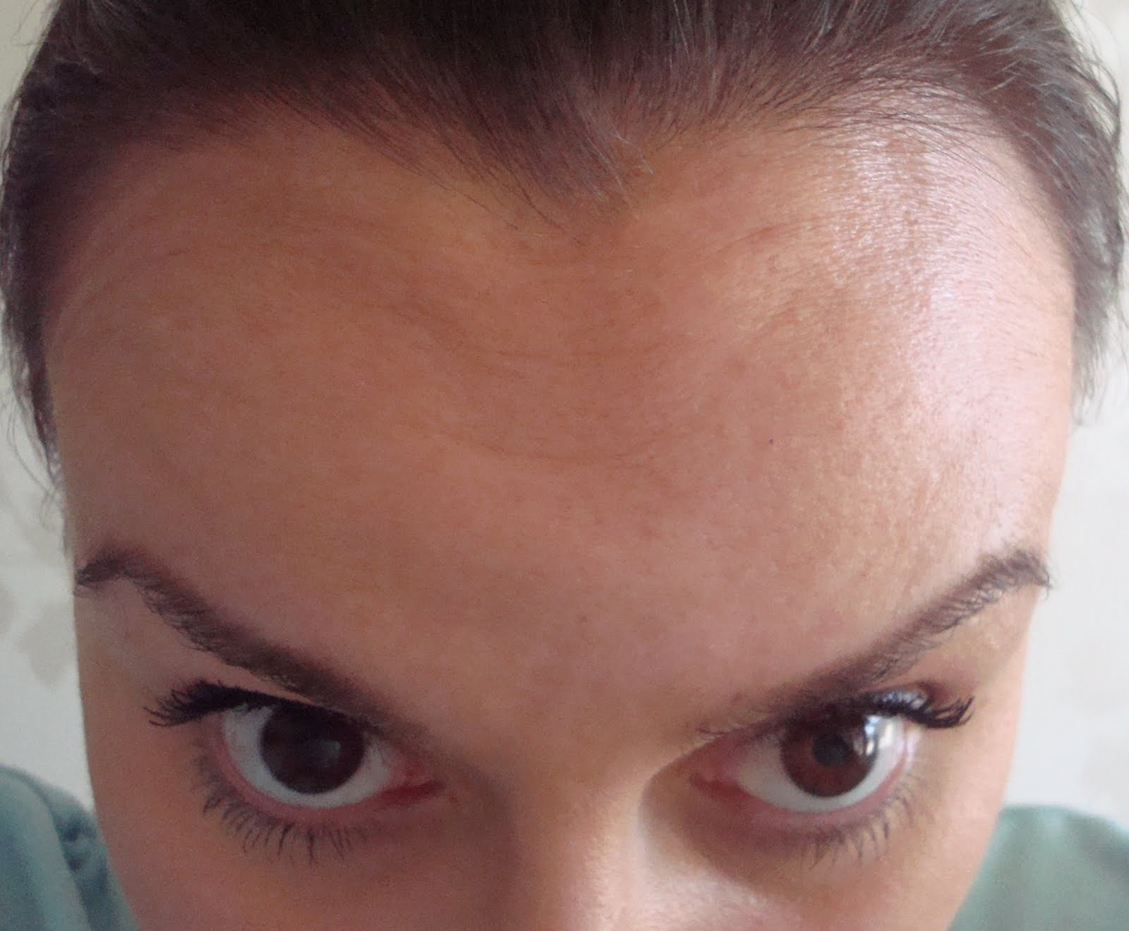 Eyebrow Droop After Botox - Lifestyle Wanita