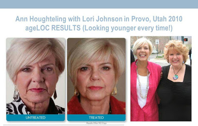 ageloc transformation nuskin