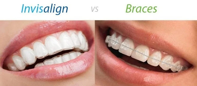 Invisalign Over Braces