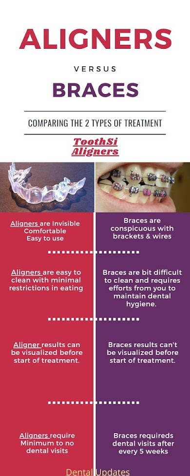 ToothSi Aligners-Invisible Braces,Clear Aligners Affordable Option To Invisalign(Aligners vs Braces)