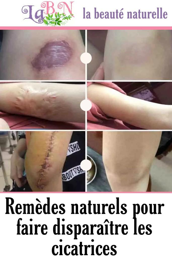 Remèdes naturels pour faire disparaître les cicatrices
