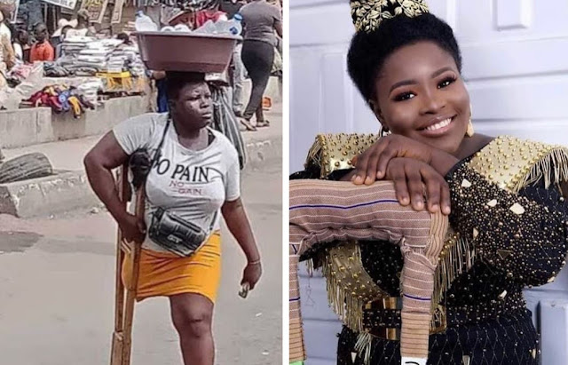 Amputee hawker shares amazing transformation photo as she celebrates her 27th birthday (Photos)