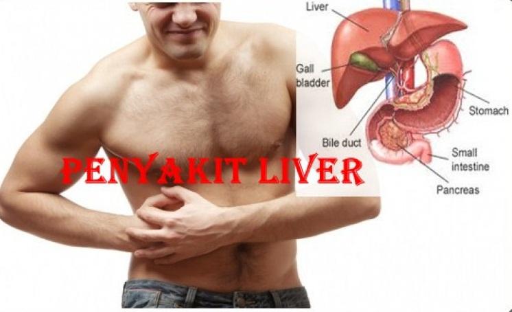 cara-mengobati-liver