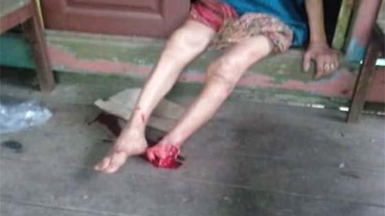 Nenek Dipotong Kaki Oleh Penagih Dadah