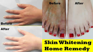 https://www.beauty-life123.com/2018/01/skin-whitening-home-remedy.htm