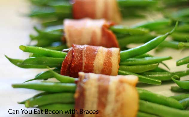 Learn About Can You Eat Bacon with Braces