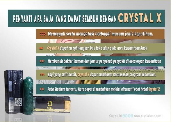 kista dapat diobati crystal x