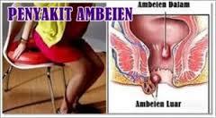 Obat Untuk Ambeien Dalam