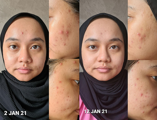 Before & After Using Aprilskin Carrotene Serum