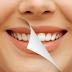 Bagaimana Cara Memutihkan Gigi Yang Sudah Kuning